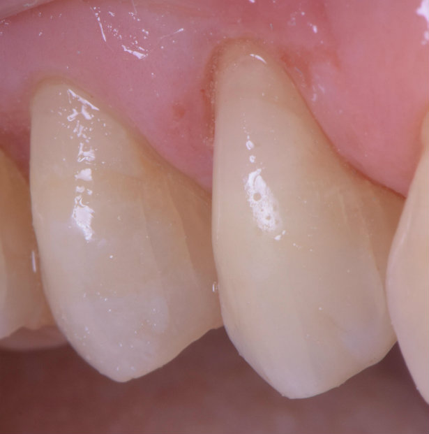 Cosmetic dentistry buccal recession after