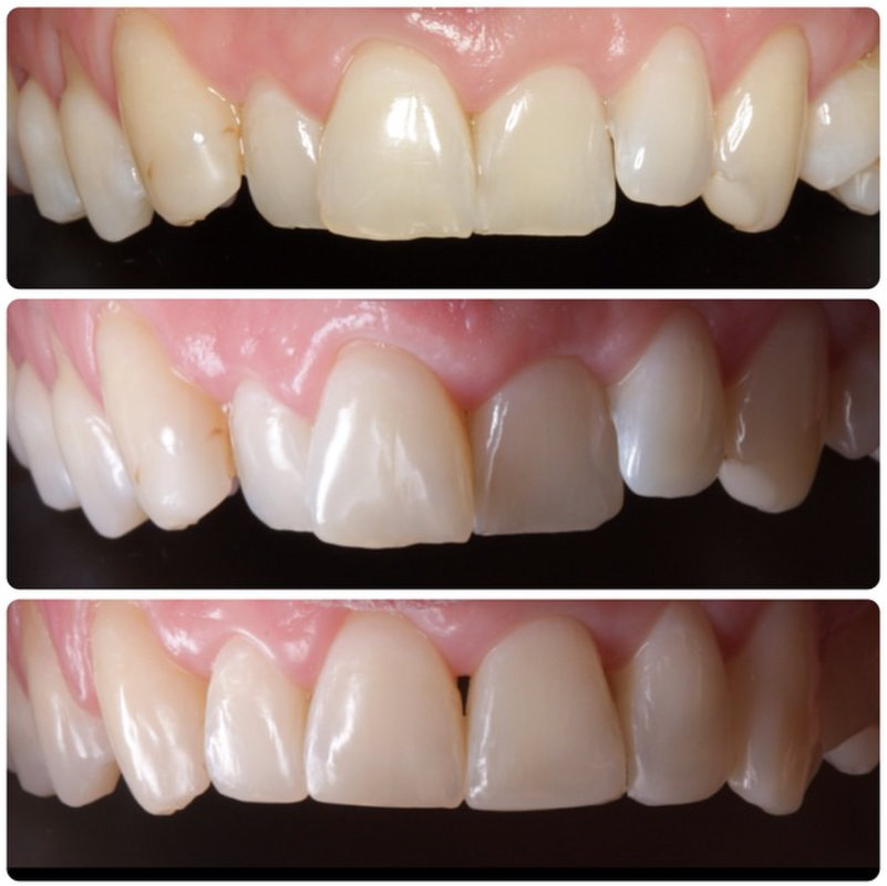 Cosmetic dentistry combination teeth whitening and straightening 2