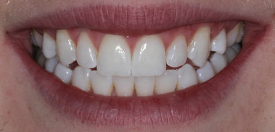Cosmetic dentistry teeth whitening after