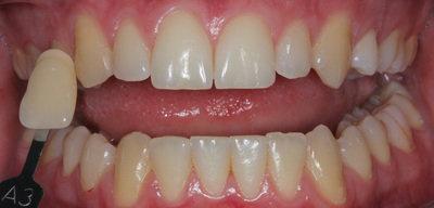 Cosmetic dentistry teeth whitening before