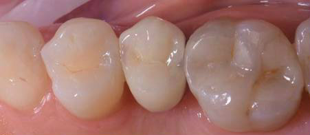 Dental implants single tooth after