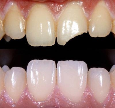 General dentistry white fillings case study 1