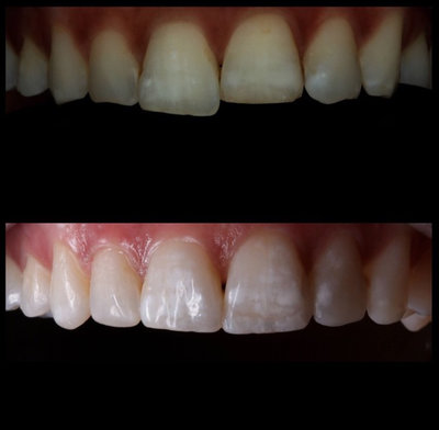 General dentistry white fillings case study 12