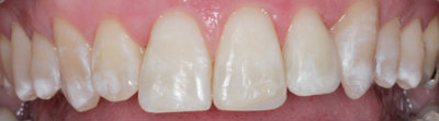 General dentistry white fillings case study 3