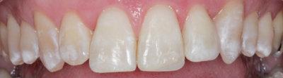 General dentistry white fillings case study 3