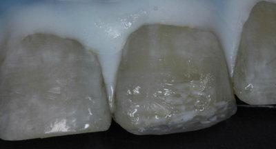 General dentistry white fillings case study 8
