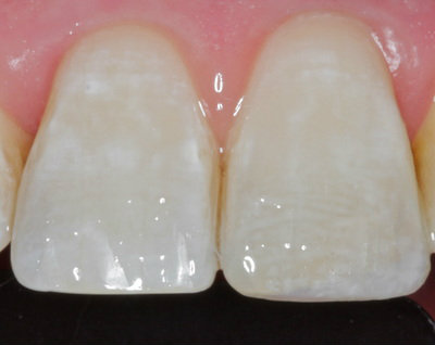 General dentistry white fillings case study 9