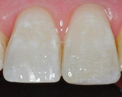 General dentistry white fillings case study 9