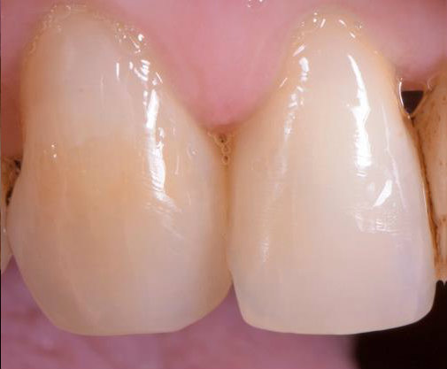 Periodontics black triangle closure after