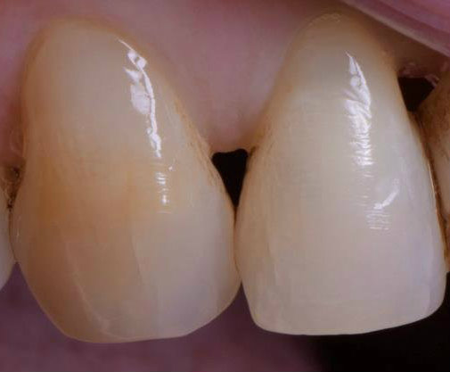 Periodontics black triangle closure before