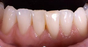 Periodontics gum grafting after