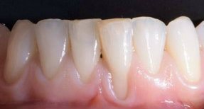 Periodontics gum grafting before