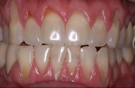 Gum Recession Treatment | Richmond Dentist | Gardens Dental