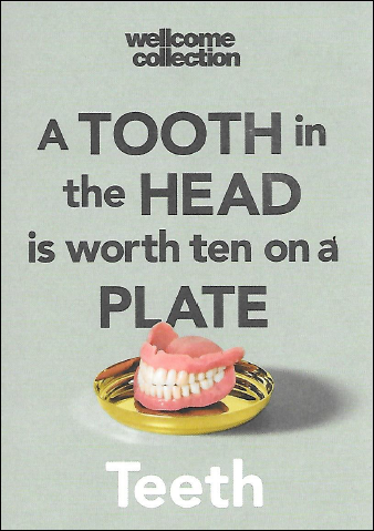 a tooth in the head