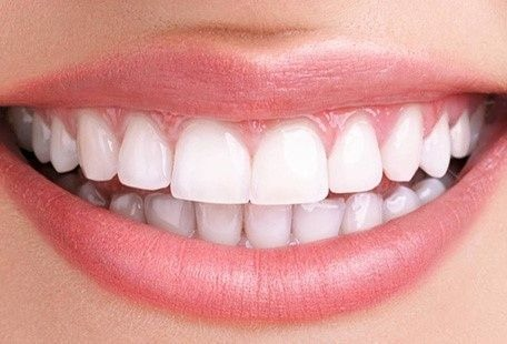 Invisalign perfect teeth