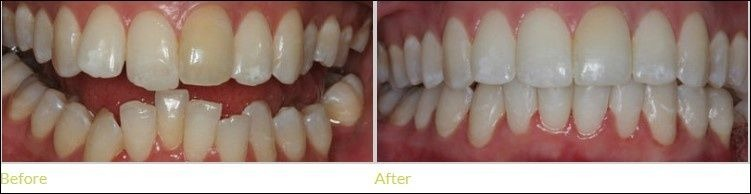 Invisalign teeth before and after