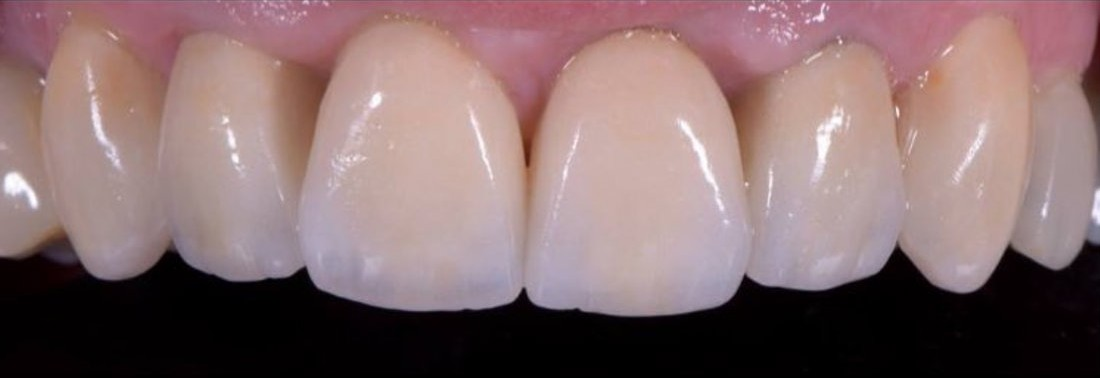 Cosmetic dentistry veneers, after