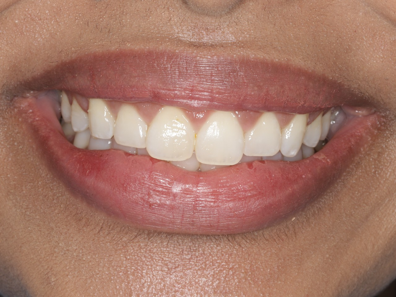 Periodontics, Crown Lengthening, after