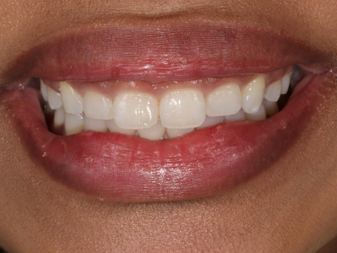Periodontics, Crown Lengthening, before