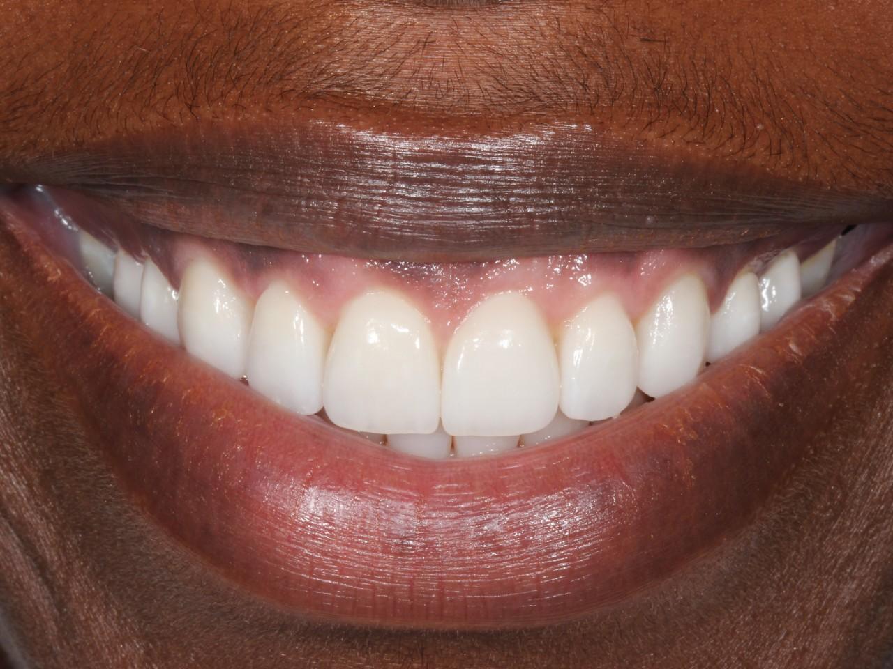 Periodontics, Gummy Smile, after