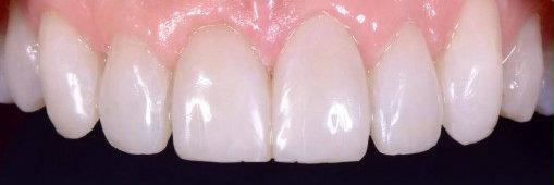 Cosmetic dentistry full mouth rehabilitation of worn down teeth after