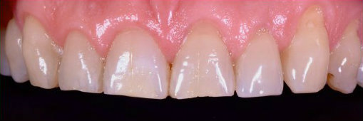 Cosmetic dentistry full mouth rehabilitation of worn down teeth before