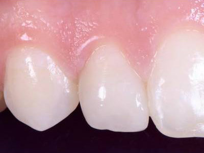 Cosmetic dentistry peg lateral direct bonding after