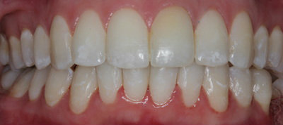 Cosmetic dentistry teeth straightening Invisalign treatments after