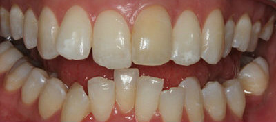 Cosmetic dentistry teeth straightening Invisalign treatments before