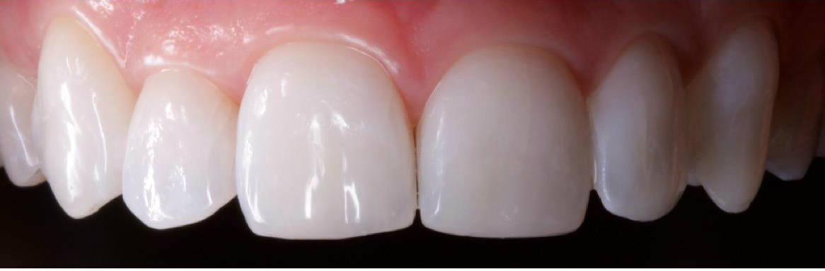 Cosmetic dentistry white spots after
