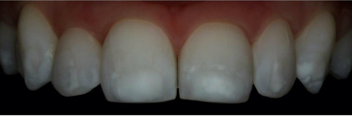Cosmetic dentistry white spots before