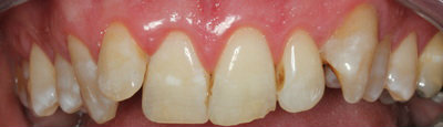 General dentistry white fillings case study 2