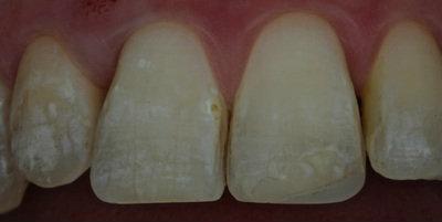General dentistry white fillings case study 4