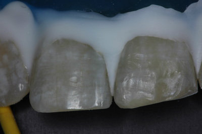 General dentistry white fillings case study 5