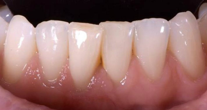 Periodontics pinhole surgery after
