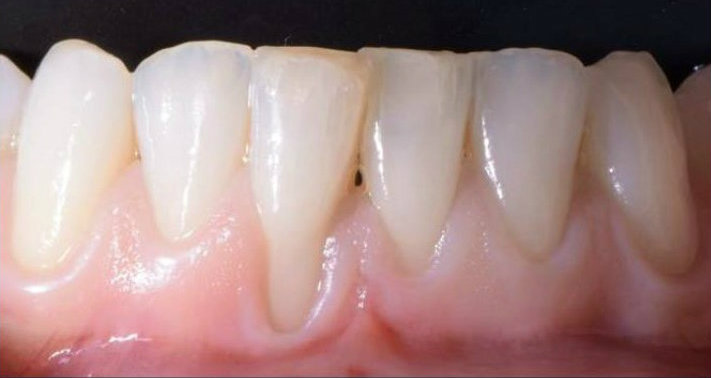 Periodontics pinhole surgery before